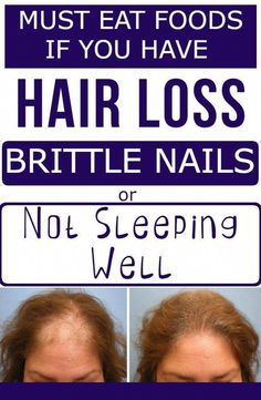Must Eats - If You Have Hair Loss, Brittle Nails Or You're Not Sleeping Well - Today Mag #BestShampooToPreventHairLoss #BiotinForHairLoss