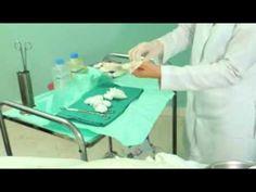 Técnica de Curación de Heridas de Cesárea