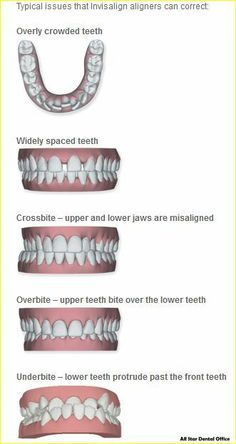 Invisalign takes teeth alignment to a whole new level that is more favorable to the patient and the dentist. Get braces that are clear and invisible to correct crooked teeth.  #Invisalign  www.allstardentaloffice.com