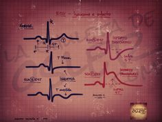 Cardiología – ECG: Isquemia e infarto | La Chuleta de Osler