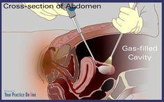 laparoscopic surgery #salpingectomy