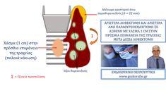 ΓΕΩΡΓΙΟΣ ΣΑΚΟΡΑΦΑΣ ΧΕΙΡΟΥΡΓΟΣ ΘΥΡΕΟΕΙΔΟΥΣ ΠΑΡΑΘΥΡΕΟΕΙΔΩΝ Αριστερή λοβεκτομή και αριστερή άνω παραθυρεοειδεκτομή σε ασθενή με όζους θυρεοειδούς, υπερπαραθυρεοειδισμό και χάσμα τραχείας μετά δεξιά λοβεκτομή
