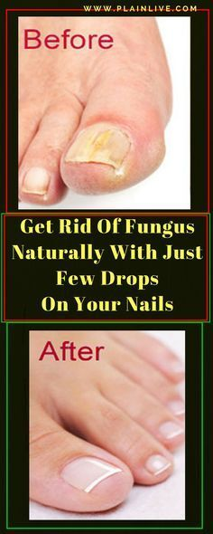 The fungi appear in women and men .Ugly but treatable .If not treated they can cause major infections and the problem will become more serious. The most common places where they develop are in the … Holistic Remedies, Natural Health Remedies, Natural Cures, Health Tips, Health And Wellness, Health Benefits, Health Fitness, Fitness Women, Health Care
