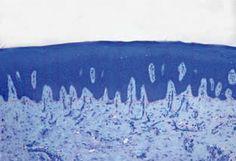 Uso del plasma rico en factores de crecimiento en el alveolo postextracción - Gaceta Dental | #odontología