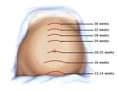 Estimation of gestational age of fetus by measurement of fundal height Pregnancy Ultrasound, Pregnancy Bump, Pregnancy Stages, Ultrasound Gender Reveal, 10 Week Ultrasound, Pregnancy Memes, Baby Development In Womb, Prenatal Development, Baby Development Chart