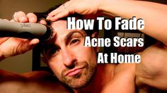 How to get rid of red acne scars overnight or in the shortest time possible? There are easy and effective natural acne scar removal methods for you to try. Skin Care Remedies, Acne Remedies, How To Fade, Face Care Routine, How To Get Rid Of Pimples, Acne Scar Removal, Remove Acne, Even Skin Tone, Top
