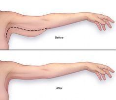 jak wyszczuplić obwisłe ramiona