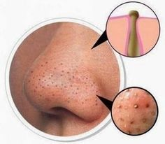 Natural remedies to Get rid of Blackheads | Health Villas