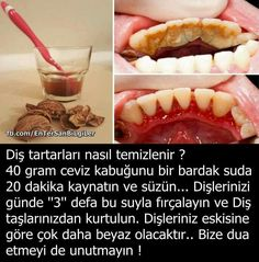 Sadece 2 Dakika`da göz altı torbalarınızdan kurtulmak ister misiniz ?  https://vimeo.com/189754907 Teeth Care, Skin Care, Keep Fit, Beauty Routines, Natural Treatments, Healthy Lifestyle, Herbalism, Reflexology, Natural Solutions