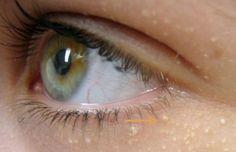 Recettes maison pour traiter les petites boules de graisse sous les yeux