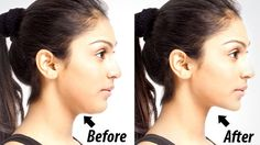 5 Extremely Easy Exercises To Get Rid Of Double Chin And Neck Fat
