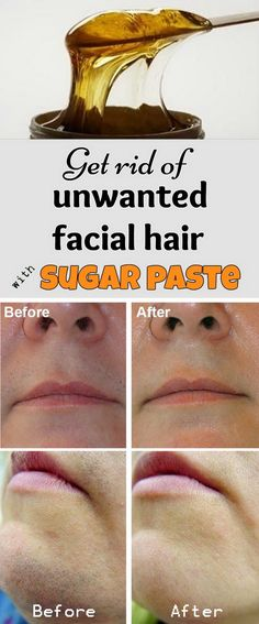 Get Rid of Unwanted Facial Hair With Sugar Paste.