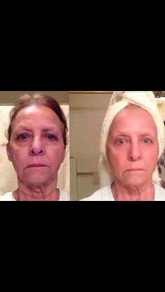 Turn back the hands of time with the REDEFINE regimen! Ridding your skin of fine lines, wrinkle and lack of firmness! Join as a PC and get 10 % off and FREE shipping :)  kellyestone.myrandf.com