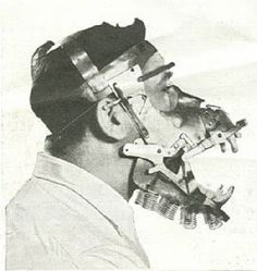 The craziest bionic animal mouth contraption one could hope for. Utopia Dystopia, Dental, Creepy Images, Vintage Medical, Bizarre, Medical History, Tecno, Macabre, Weird