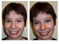 Before and After using Mary Kay Skin Care Line TimeWise and the Makeup Line as well! :)