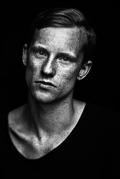 """A freckled black and white portrait from the coffee table book """"we are freckled"""" by the swedish photographer Jonas Carmhagen who is fascinated by freckles and people behind them."""