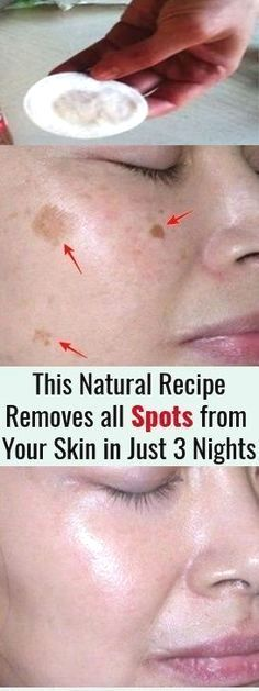 I m Shocked This Natural Remedy Removed all Spots from My Skin in Just 3 Nights This 2 ingredient remedy removes all spots from your face in just 3 nights. For the preparation you will need completely natural ingredients. self beauty