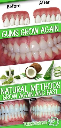 Natural Teeth Whitening Make Receding Gums Grow Again And Fast With These Natural Methods – Touch Of The Nature - Gum Health, Teeth Health, Healthy Teeth, Dental Health, Dental Care, Oral Health, Women's Health, Health Fitness, Natural Home Remedies