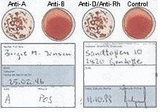 Blood Type Eldoncard Typing Test Kit Includes: 1 Eldoncard, lancet, gauze, alcohol wipe, micropipette by Eldon, http://www.amazon.com/dp/B000FV1K26/ref=cm_sw_r_pi_dp_Zdycqb1C45J33