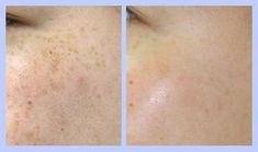 【実話】47歳の女性のシミが1ヶ月で消える?秘密は【肌の漂白剤】と言われるクリームでした! | mignon