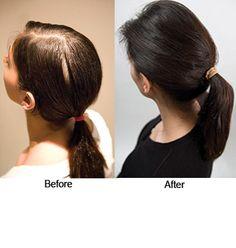 Viviscal™ Hair Nutrient Tablets
