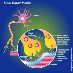 How Botox Works!  Luxury Med Spa in Farmington Hills, MI is a GREAT place to pamper yourself!  Call (248) 855-0900 to schedule an appointment or visit our website medicalandspa.com for more information!