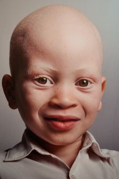 Children of the Moon – Mozambican Albinos