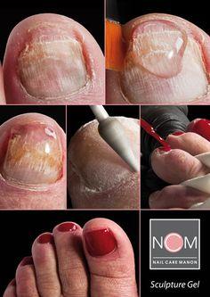 Revolutionary Responsible toenail Repair System