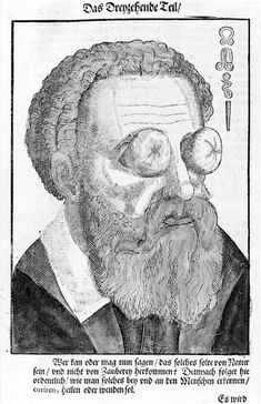 Bizarre Illustrations From When Eye Doctors Had Weird Witchcraft Remedies