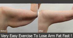 Remove Fat From Your Arms in a Week
