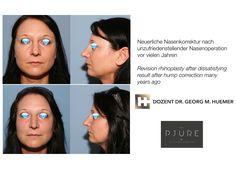 Vor und nach Korrektur einer vorangegangenen Nasenkorrektur Operation, Fitbit, Wels, Linz, Guys