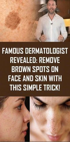 How to get Rid Of Black Spots on Face - What Causes Brown Spots On Skin - lippenmakeup Sun Spots On Skin, Black Spots On Face, Brown Spots On Skin, Dark Spots, Brown Skin, How To Get Rid, How To Remove, Natural Medicine For Anxiety, Warts On Hands