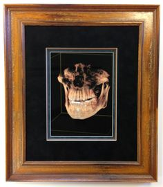 The next time you get an x-ray taken, don't forget... you can frame it! It's a one of a kind, and you know the artist inside and out!