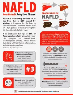 Liver Cleanse Detox Ayurvedic Treatment of Liver Disorders: Non-Alcoholic Fatty Liver Disease - NAFLD Liver Disease Diet, Fatty Liver Diet, Healthy Liver, Stay Healthy, Eating Healthy, Healthy Habits, Natural Liver Detox, Natural Cleanse, Natural Health