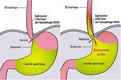 Le reflux gastro-oesophagien, ou remontées acides, se produit lorsque l'acide produit naturellement parl'estomacse répandde l'estomac vers l'œsophage. Le reflux gastro-oesophagienpeut être causé par l'hyperacidité ou un changement radical dans les habitudes alimentaires. Le reflux gastro-oesophagien ou RGO entraîne des brûlures d'estomac. Causes possibles durefluxgastro-oesophagien Excès alimentaires Caféine Boissons alcoolisées Tabagisme Stress Consommation excessive d'aliments gras …