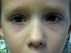 Nystagmus In Children: Helping The Little Angels To Deal With Nystagmus