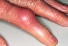 Gout can also appear on your hands.