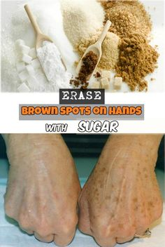 Learn how to erase brown spots on hands using sugar.