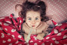 The legendary measles fraud by John Wilhelm is a photoholic - Photo 140985003 - 500px