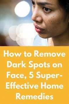 How to Remove Dark Spots on Face, 5 Super-Effective Home Remedies Be it excessive sun exposure, hormonal changes, facial hair removal, acne, aging or any other reason for the dark spots on your face, it never looks good. From ruining your group photos to making you feel unconfident in interviews, it can affect every aspect of your life. Although there are other ways to remove dark … #BrownSpotsOnChest #GetRidOfBrownSpots #BrownSpotsOnSkin