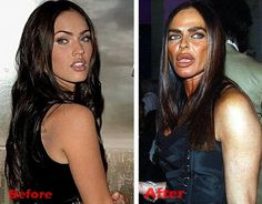 Michaela Romanini Plastic Surgery gone wrong before and after pictures...