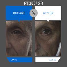 Amazing results in 28 days .... WOW www.newhealth4u.net