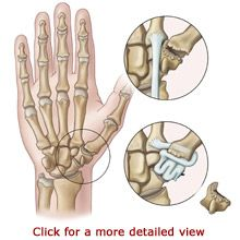 arthritis surgery for thumb | Thumb CMC Arthroplasty - Thumb Joint Reconstruction
