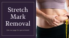 These marks are common. Stretch marks are developed in both men & women. They can mostly be found on thighs, breasts, hips, stomach, lower back & upper arms.Experts will easily remove the stretch marks from your skin. Stretch Mark Removal, Stretch Marks, Organic Makeup, Organic Beauty, Natural Beauty Remedies, Alternative Treatments, Natural Cosmetics, Skin Products, Beauty Products
