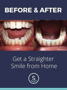 Straighten your smile for up to 70% less than other brands with SmileCareClub, all from home. See how it works and get started with your free smile assessment and risk-free evaluation today!