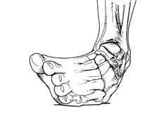 Treating a sprained ankle the RIGHT way early, means a stronger ankle and faster recovery. See effective self treatment and the best rehab exercises: Basketball Problems, Basketball Memes, Basketball Is Life, Football Memes, Sports Memes, Nba Memes, Ankle Ligaments, Self Treatment, Volleyball Players