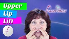Get Rid of Smokers Lines - Upper Lip Lift - Vertical Lip Lines - Periora...