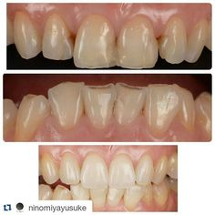 #Repost @ninomiyayusuke Long team stability veneers case for wear patient .key is patterns of wear .#estheticdentistry #dentalphotography #perfect #esthetic #functional #dentistry #dentipro#sony #nikon by odontoenlinea Our General Dentistry Page: http://www.myimagedental.com/services/general-dentistry/ Google My Business: https://plus.google.com/ImageDentalStockton/about Our Yelp Page: bit.ly/1KZUPer Our Facebook Page: https://www.facebook.com/MyImageDental Image Dental 3453 Brookside Road…
