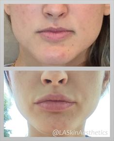 1 syringe of in the lips. After photo sent in by patient 2 weeks post injection. Dermal Fillers, Lip Fillers, Facial Fillers, Cosmetic Treatments, Skin Treatments, Lip Injections Juvederm, Restylane Lips, Best Chemical Peel, Facial Esthetics