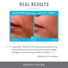 """""""I used Rodan Fields ACUTE CARE and was amazed with my results after just one use. My smile seems to be getting bigger as my smile lines get smaller and smaller"""" - Megan RF Consultant. Place an order ANY PC order the month of March and you'll be entered to win a box of this amazing product. Message me email me text me for more information. #skincare #hot #eyes #beautiful #fashion #happy #face #love #selfietime #life #style #wrinkles #younger #mom"""
